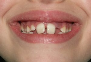 denti incisivi trauma sportivo