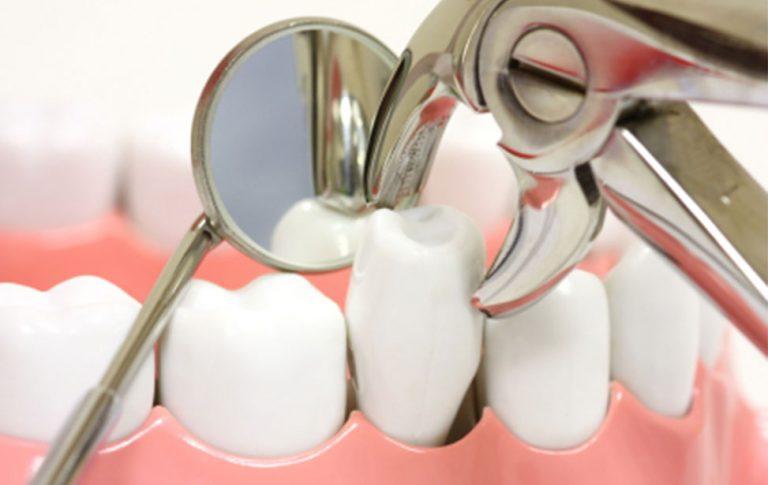 dentista estrazione