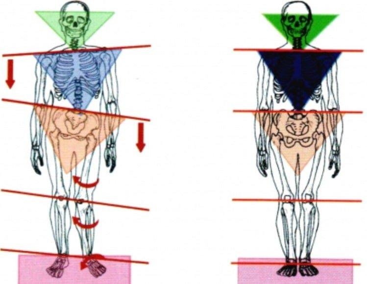 occlusione e postura